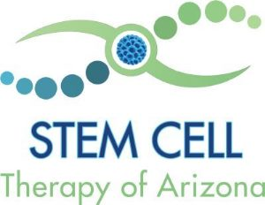 Stem Cell Therapy of AZ